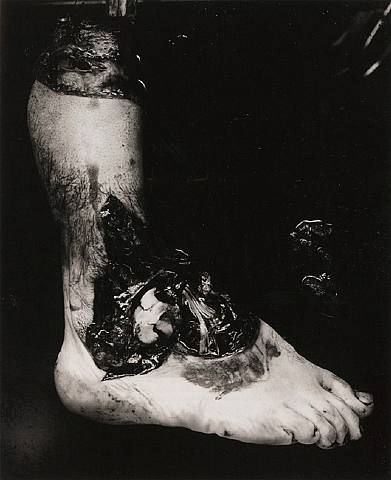amputated leg 1939