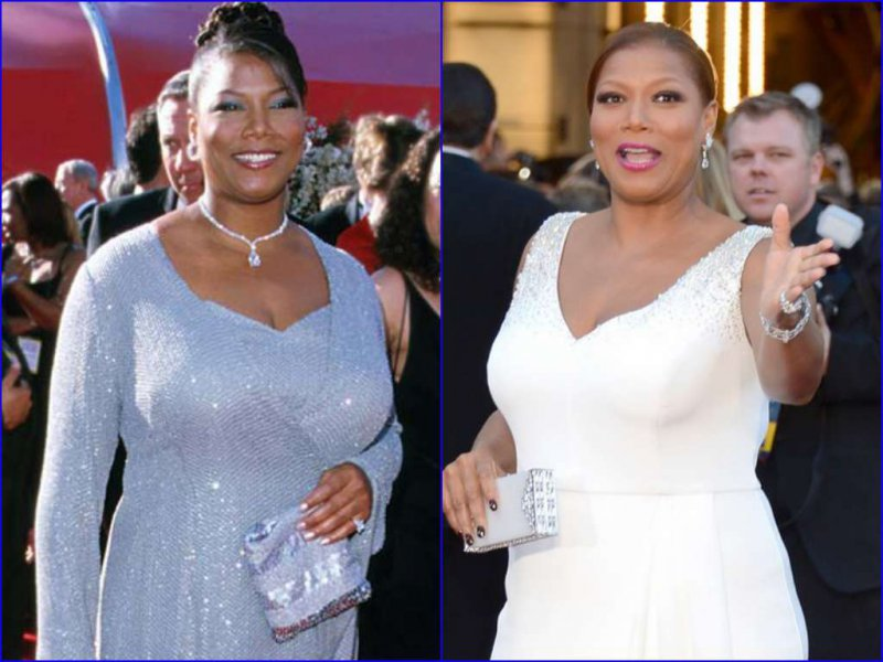15 Celebrities Who Had Breast Reduction Surgeries