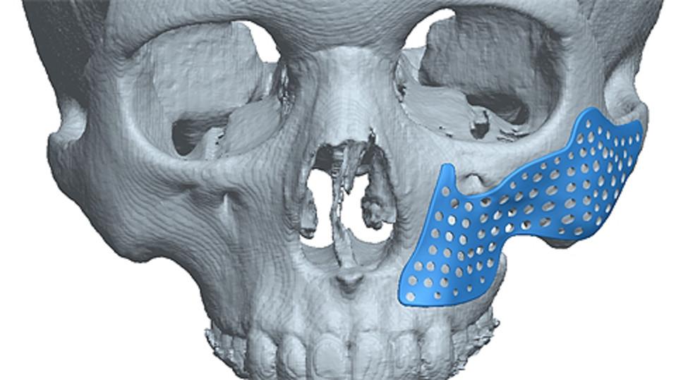 Tietokoneen mallinnusohjelmalla tehty kaaviokuva 12-vuotiaan syöpäpotilaan poskeen asennetusta implantista ja sen asennuskohdasta.