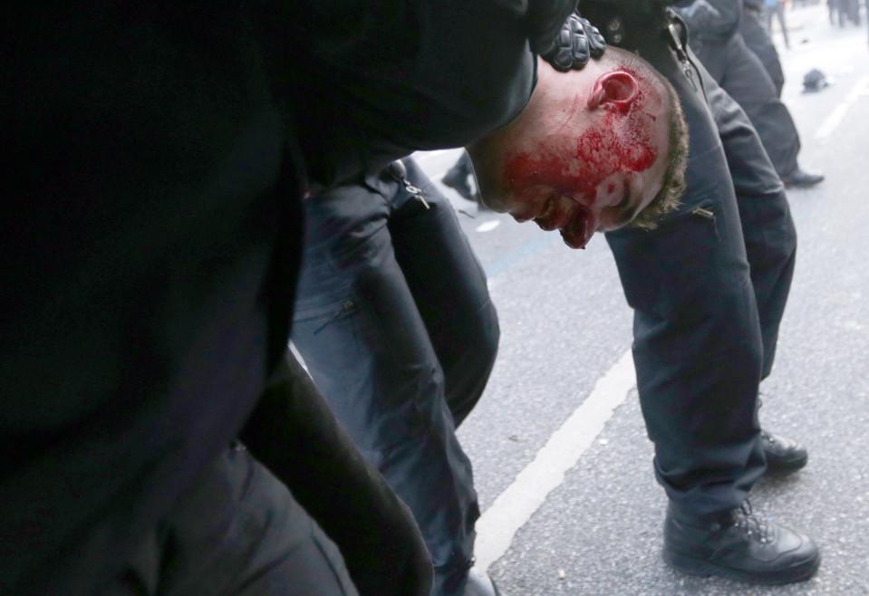 Verta vuotava mielenosoittaja Saksan poliisin kiinniottamana Hampurissa torstaina 6. heinäkuuta.