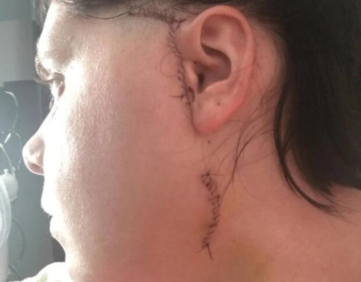 Injury.  The scar that remained after the operation.  Photo: Holly Strevens.