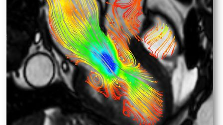 A graphic of a heart MRI with 4D flow