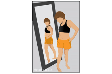 Illustration of a person examining their body for signs of skin cancer in a full-length mirror