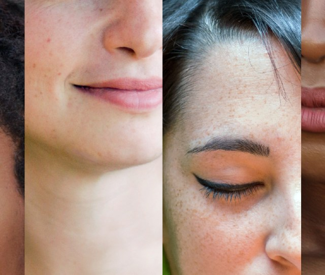 Four Partial Faces Are Shown With Different Skin Types