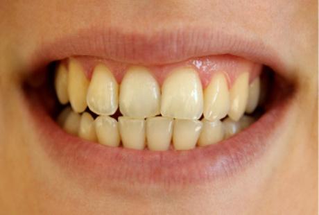 Konsultasi Gigi Cara Memutihkan Gigi Yang Aman Arirang Dental Clinic