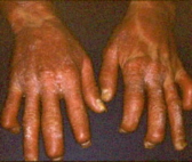 Picture Of Severe Psoriatic Arthritis Involving The Finger Joints