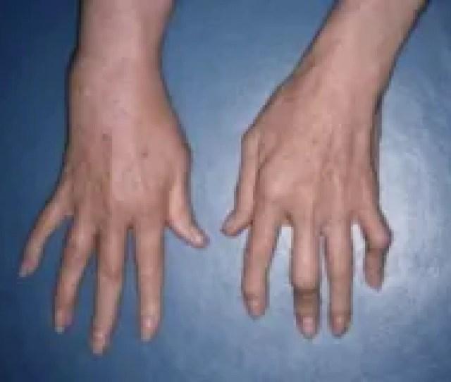 Psoriatic Arthritis Involving The Fingers