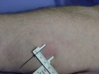 Mantoux test is done to identify patients who are infected with the tuberculous infection; they may or may not have the disease. This test is also used as a public-health measure to detect infection in patient's family and friends.