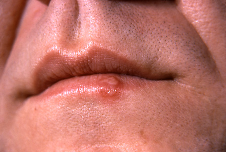 Are Cold Sores A Sign Of Herpes? 2