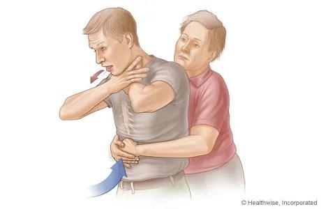 Foto de un procedimiento de rescate de asfixia (maniobra de Heimlich)