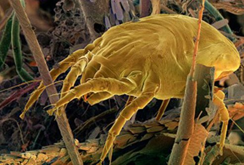 A dust mite in a dust ball.
