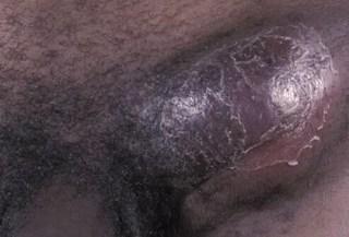 genital ulcers