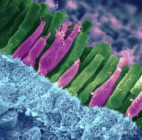 ภาพเซลล์รับแสงในเรตินา มีแบบเป็นแท่งๆเรียกว่า Rod และแบบแหลมๆเรียกว่า Cone