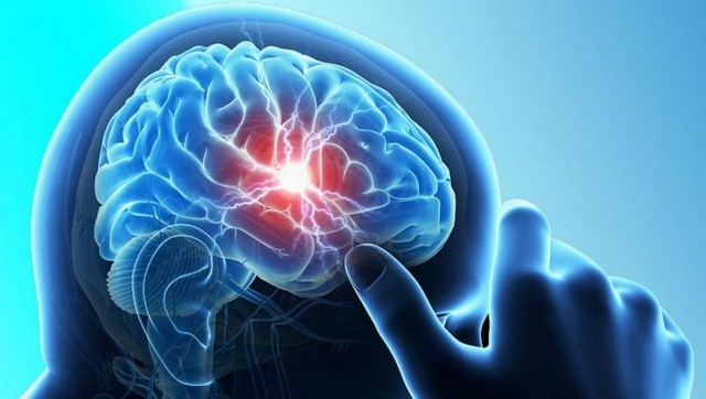 Women more likely to die within a year of experiencing their first stroke compared to men, finds study