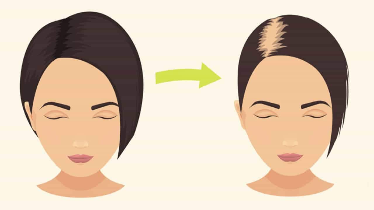 Hair loss therapy: New study suggests microRNA based products may work better than existing regeneration treatments