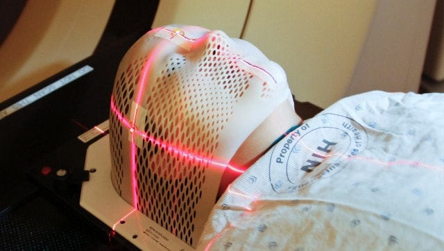 COVID-19 treatment: Study finds photodynamic therapy useful in treating secondary infections