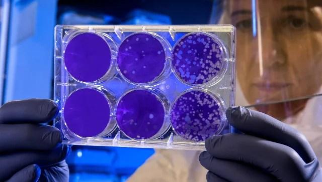 Hantavirus: German study suggests any rat could get Seoul virus, transmit it to humans