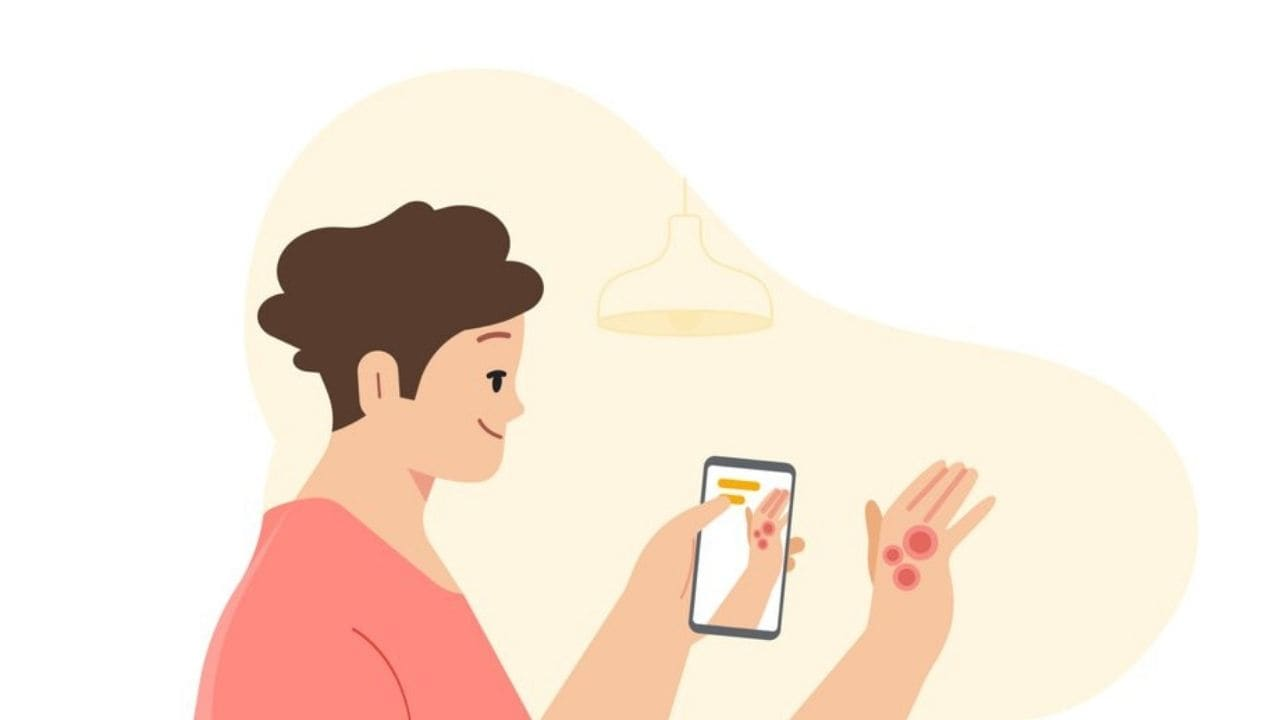 Dermatology assist tool showcased, to help get info about common skin condition using smartphone camera- Technology News, Gadgetclock