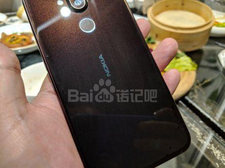 Nokia-7.1-Plus-X7-leak-2