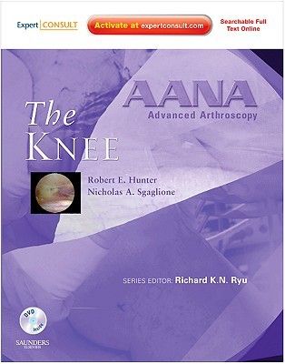 Aana Advanced Arthroscopy: The Knee: Expert Consult: Online, Print And Dvd