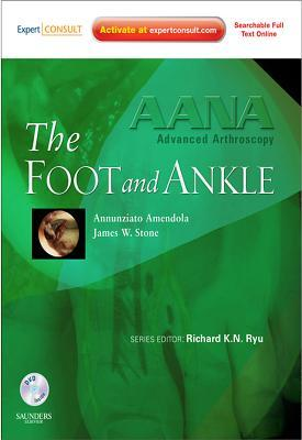 Aana Advanced Arthroscopy: The Foot and Ankle E-Book: Expert Consult: Online, Print and DVD