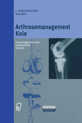 Arthrosemanagement Knie: Umstellungsosteotomie Endoprothetik Revision