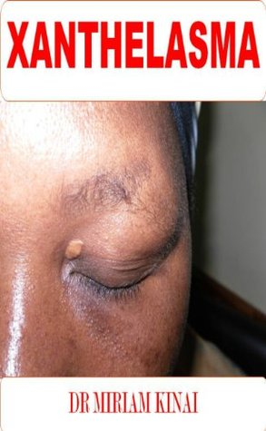 Dermatology: Xanthelasma