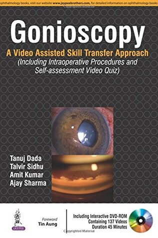Gonioscopy: A Video Assisted Skill Transfer Approach