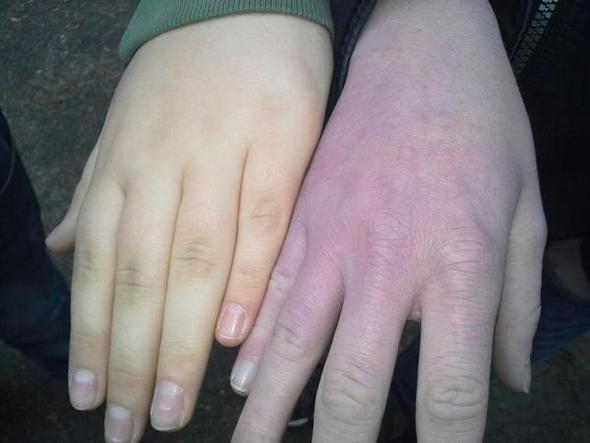 blaue hand noch normal blau