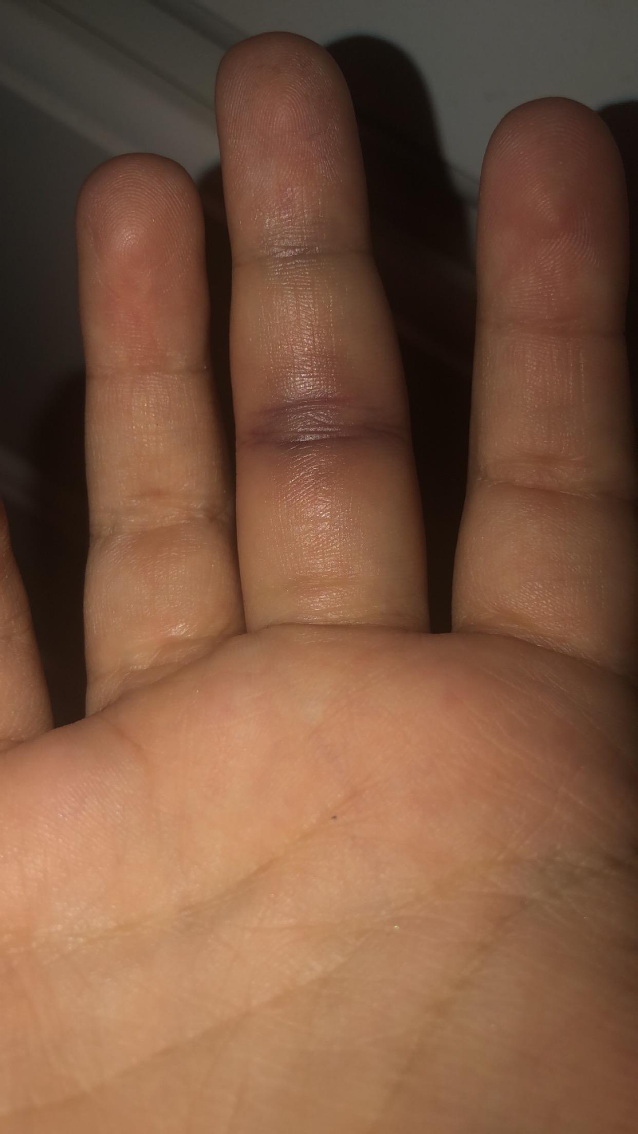finger auf einmal dick und blau