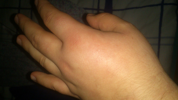 hand schmerzt nach sturz zum arzt