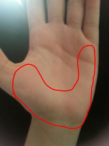 handschmerzen im handballen entzundung