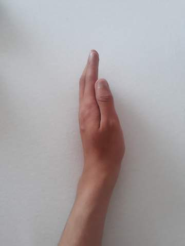 mein handgelenk gebrochen bzw geprellt