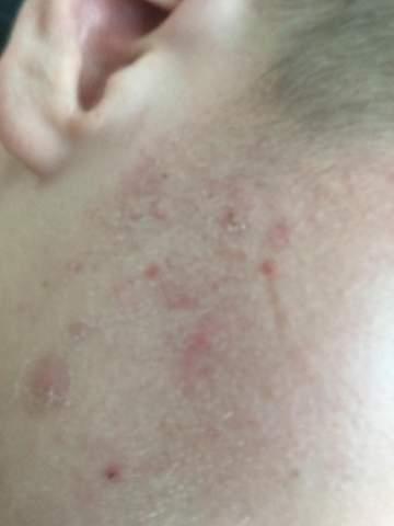 Punkte der rote eichel auf Rote Flecken