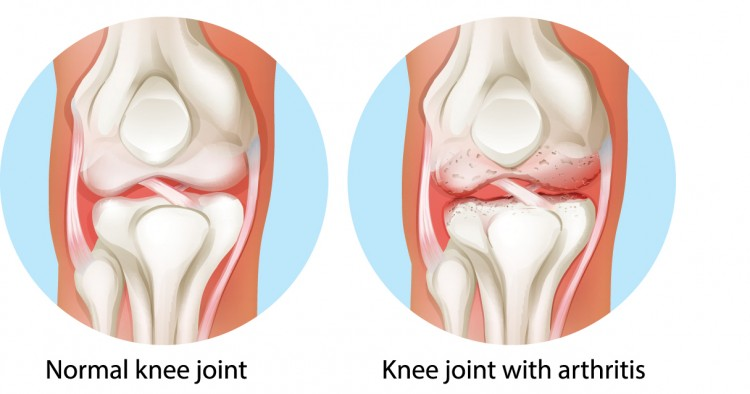 </p> <p>knee cartilage replacement