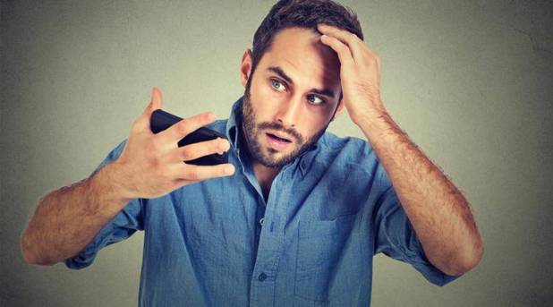 hair loss, male baldness, baldness causes, hair loss of men, hair loss genetic reasons, baldness genetic reasons, baldness genes, indian express, indian express news