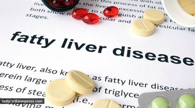 fatty liver disease. international nash day