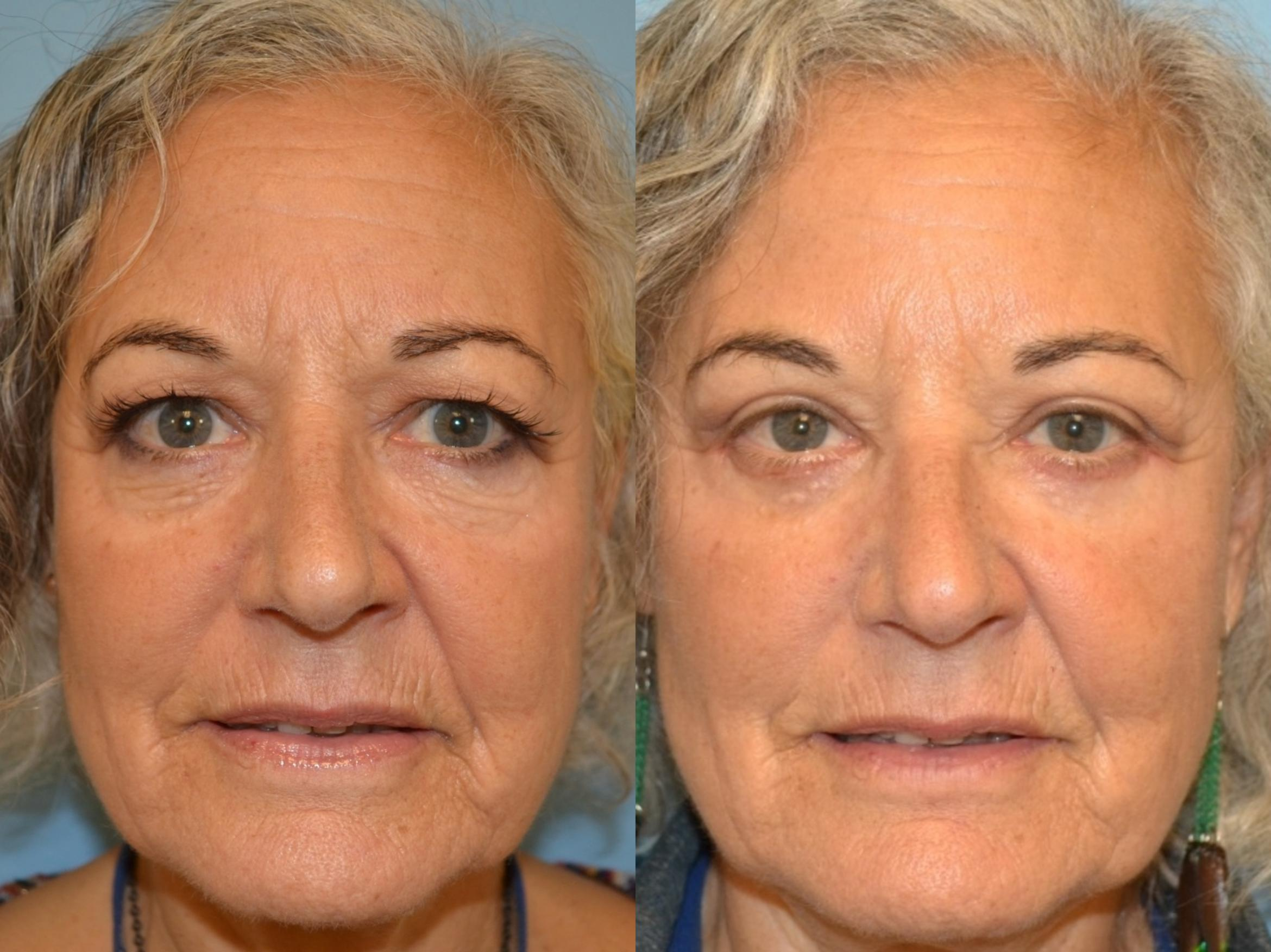 Eyelid Surgery Before Amp After Photos Patient 149