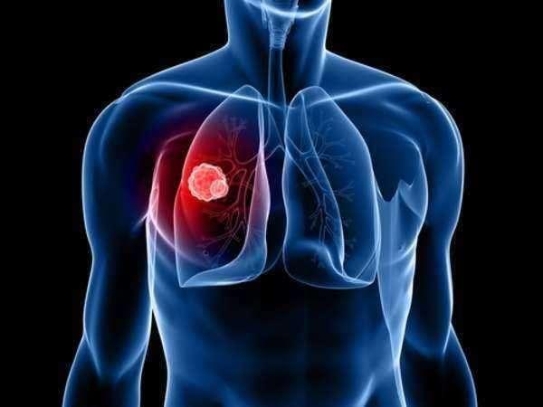 El mesotelioma, una rara forma de cáncer que se desarrolla en el revestimiento protector de muchos órganos internos, es causado por la exposición al asbesto, como por ejemplo al respirar o ingerir asbesto en el lugar de trabajo.los síntomas de mesotelioma podrían no aparecer sino hasta. Mesotelioma Pleural - Abogado   Laws.com