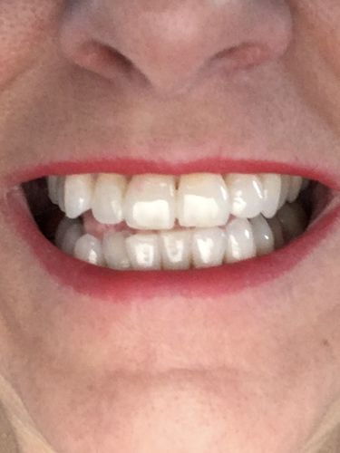 Tina F. review of Snow® At-Home Teeth Whitening (ALL-IN-ONE KIT)