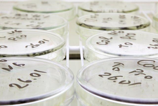 La génétique pourrait participer au traitement d'un nombre... (Photo : Relaxnews)