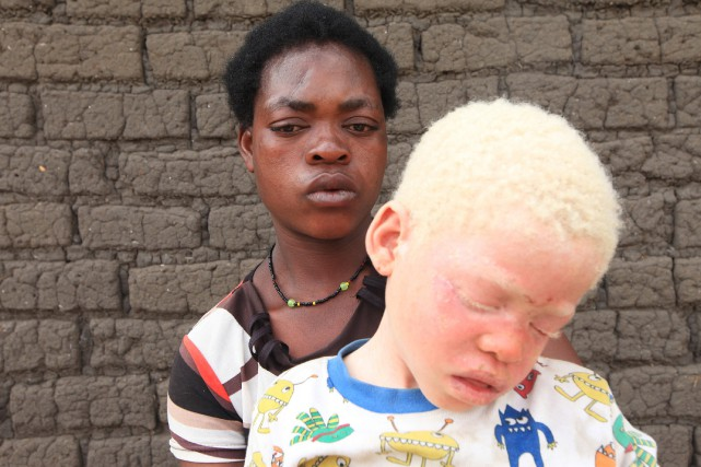 Edna Cedrick, 26 ans, en compagnie de son... (Photo AP)