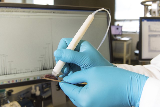 La sonde «MasSpec Pen»permet d'extraire en douceur des... (PHOTO AP)