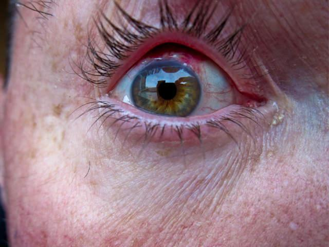 Contact Lens Wearers Beware 5 Things That Can Go Horribly