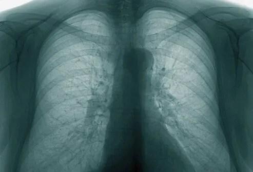 bronchitis s1 x ray - La Bronquitis Definición y Tratamientos