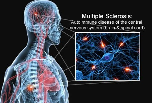 New Drug May Beat Older One at Preventing MS Relapse 2