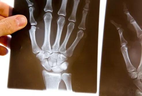 Beta-Blocker Heart Meds Might Lower Arthritis Risk 2