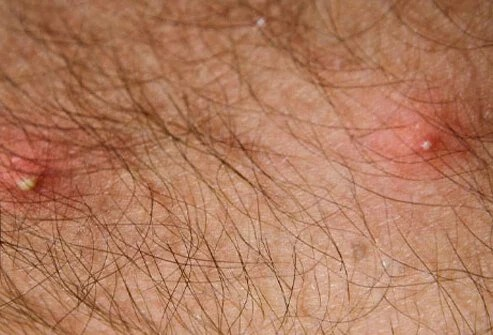 Painful stings from a fire ant that quickly fills with pus.