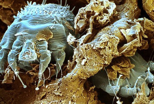 Scabies is caused by tiny mites that burrow into your skin.