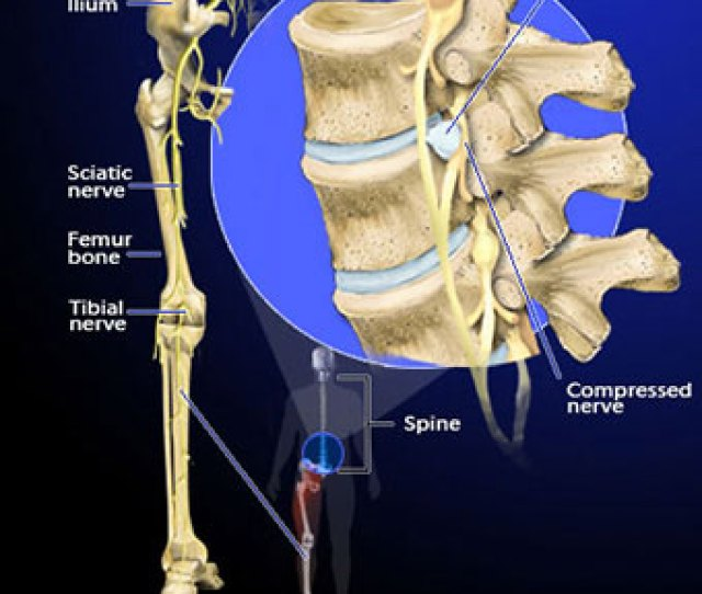 Illustration Of Sciatica Caused By Disc Herniation